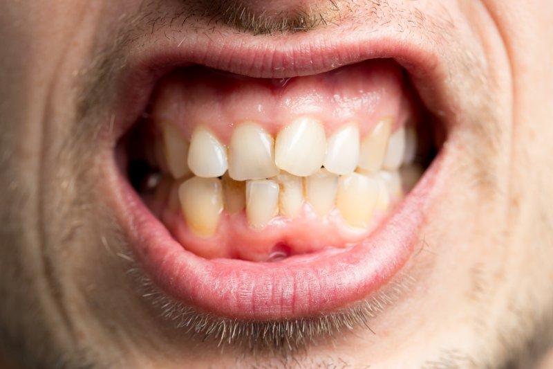 man with crooked teeth in Worthington